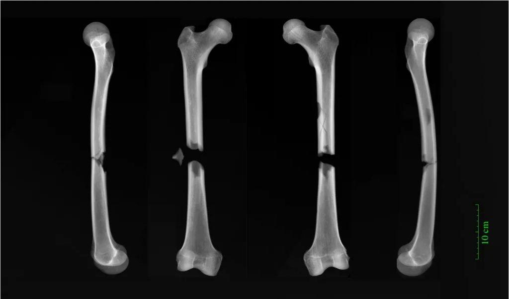 cambridge_bones